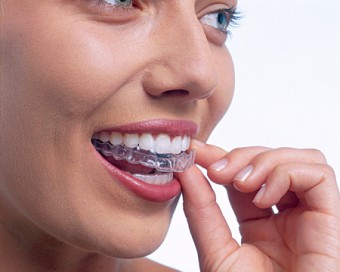 A new approach to teeth straightening from clearbraces.ie