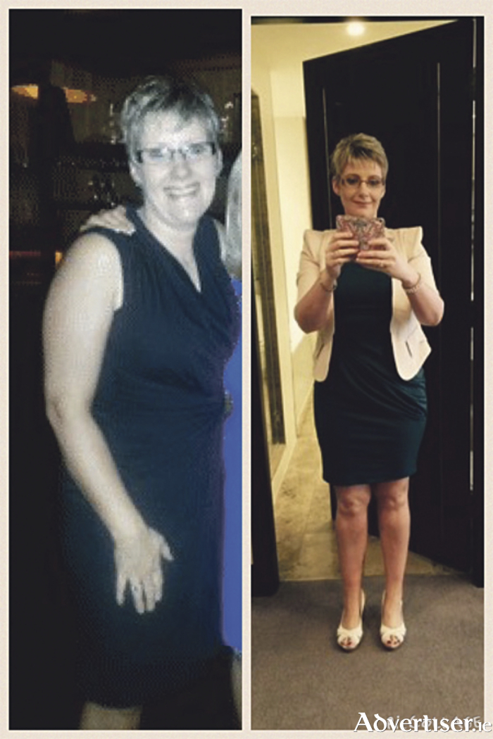 Catherine Macklin - before and after